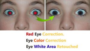 Eye color correction
