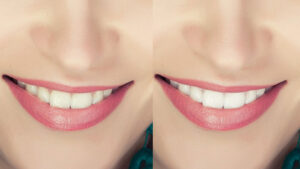 Model Retouching Teeth Whiting